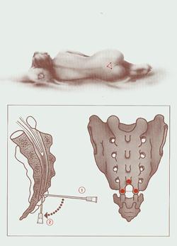 μυοσκελετικοι πονοι - ορθοπεδικοι πονοι αρθρώσεων θεραπεία