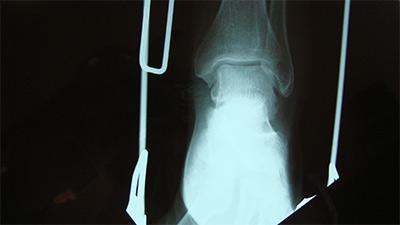 ekswteriki-osteosynthesi-aktinografia