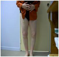 Βαρύτατη Αρθρίτιδα Γόνατος