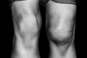 υγρό στο γόνατο