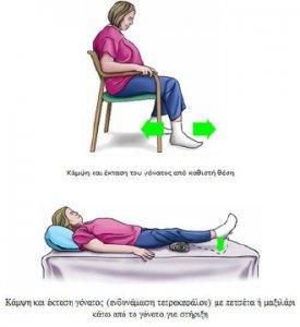 ρομποτικη αρθροπλαστικη γονατος αποθεραπεια - αναρρωση